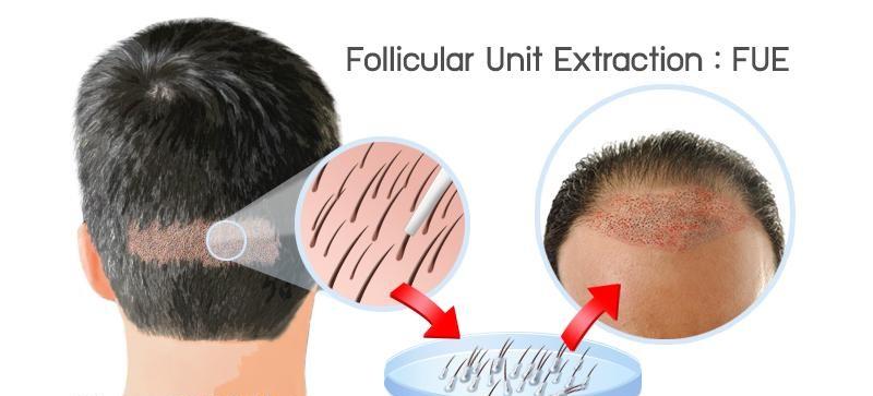 hair Transplantation ile ilgili görsel sonucu