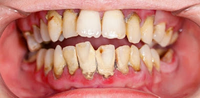 Bahan Alami Rumahan Yang Dapat Atasi Karang Gigi
