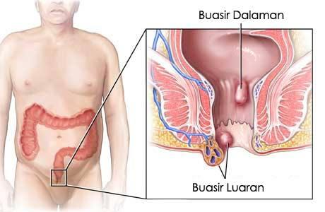 http://ohbuasir.blogspot.com/2017/12/buasir-tahap-4-sangat-serius.html