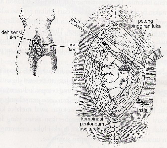 dehisensi luka operasi abdomen