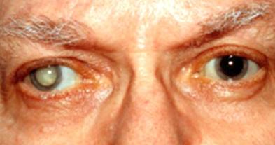 Buat anda peduli terhadap kesehatan mata anda Gejala, jenis, penyebab dan cara mengobati mata katarak