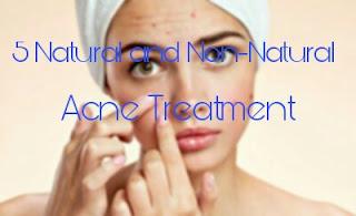 5 Natural and Non-Natural Acne Treatments