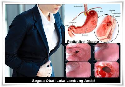 Obat Herbal Luka Lambung (Tukak) Paling Ampuh