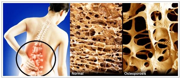Cara Mengobati Osteoporosis (Pengeroposan Tulang) Yang Alami
