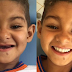 Brazil Boy Regains Smile After Losing All His Teeth