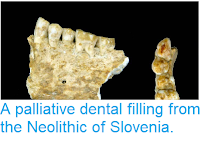 http://sciencythoughts.blogspot.com/2014/04/a-palliative-dental-filling-from.html