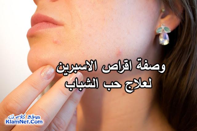 وصفة اقراص الاسبرين لعلاج حب الشباب Acne-Treatment