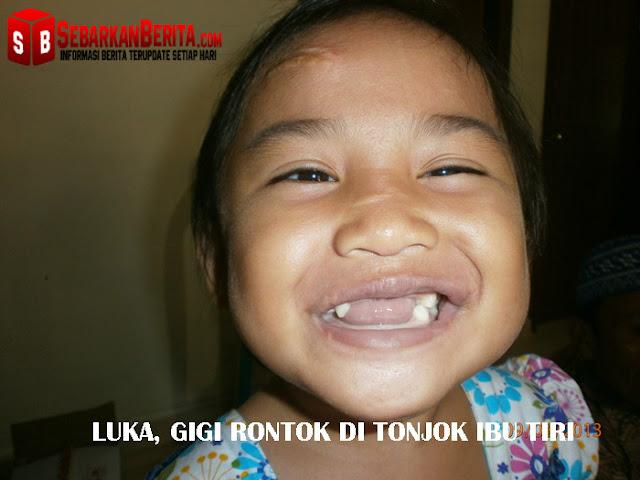 """""""Mama Septi Lebarin mulut Tiara"""" ujar Bocah 4 Tahun Yang Disiksa Oleh Ibu Tirinya."""