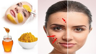 Home Remedies for AcneTreatments