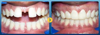 Điều trị răng cửa thưa mọc lệch bằng niềng răng