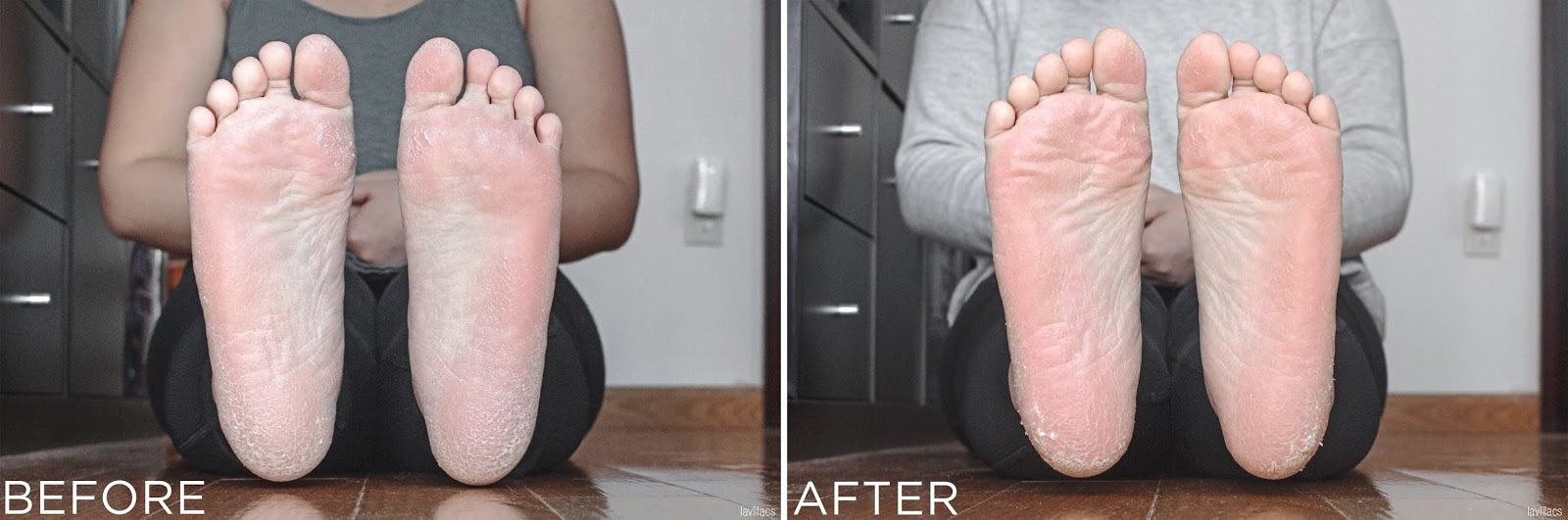 lavlilacs It'S SKIN Self Care Foot Peeling - Before and After