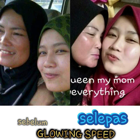 glowing speed skincare testimoni