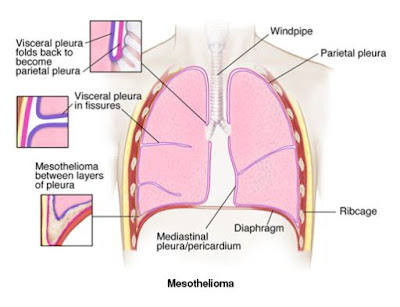 pleural effusion causes diagnosis and treatment - 460×328