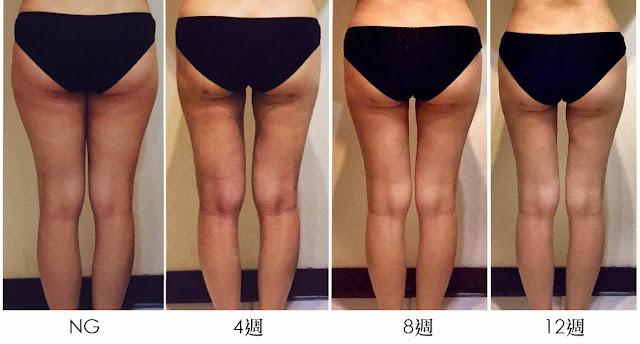 彤顏診所-瘦大腿-象腿-粗腿-蜜大腿-抽脂-瘦大小腿最快的方法-整形外科-陳錫賢醫師-抽脂價格-水刀抽脂價格-抽脂術後