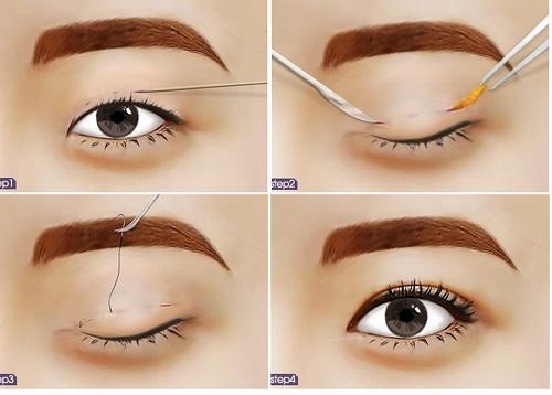 Nhấn mí mắt có hại gì cho mắt không?