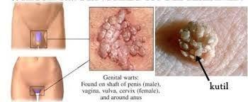 Foto Penyebab Muncul Daging Tumbuh Di Vagina