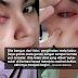 'Saya gosok mata ganas sangat & guna ubat mata dibeli di farmasi tanpa rujuk doktor, sampai jadi begini'