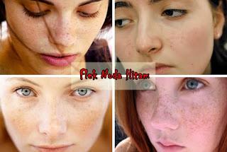 Cream Penghilang Flek Hitam Liyoskin