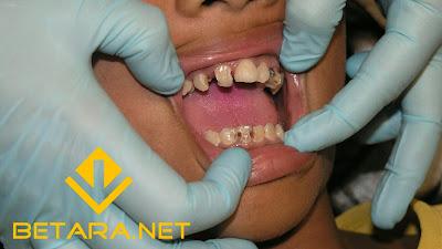 cara mengobati sakit gigi di sertai sakit kepala