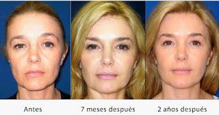 Rejuvenecimiento facial regenerativo