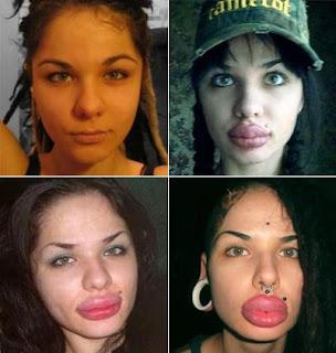 Жертвы пластической красоты