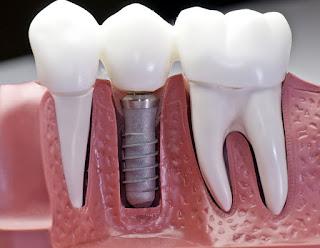 Implant Sureci Nedir, Tedavi Olduktan Ne Kadar Sure Sonra İyileşir, En Önemli Dikkat Edilmesi Gereken Şeyler Nelerdir?