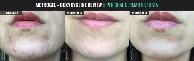 Metronidazole + Doxycycline Review :: Perioral Dermatitis