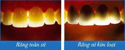 làm răng sứ có đắt không -5