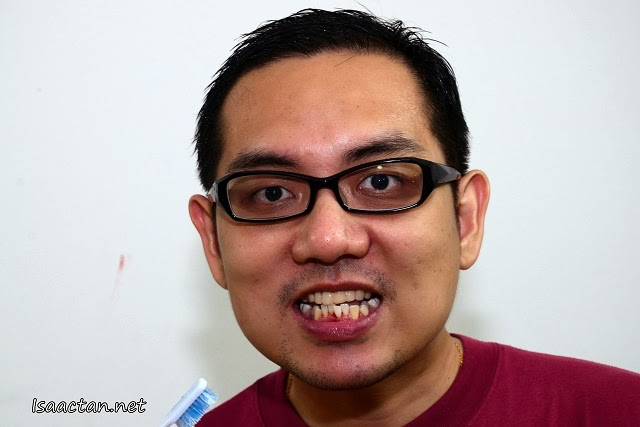 Sorry for shocking you with my morning look, but if you observe, my gums are really sensitive and bleed easily.