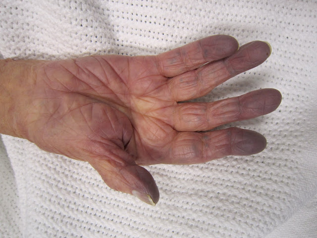 hand of the patient with cyanosis