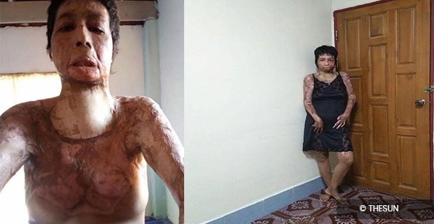 Husband burn Her Wife Because of Her Facebook Selfies! Check This!