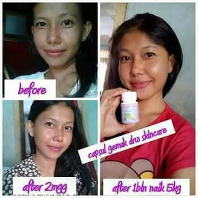 Testimoni Kapsul Gemuk Drw skincare