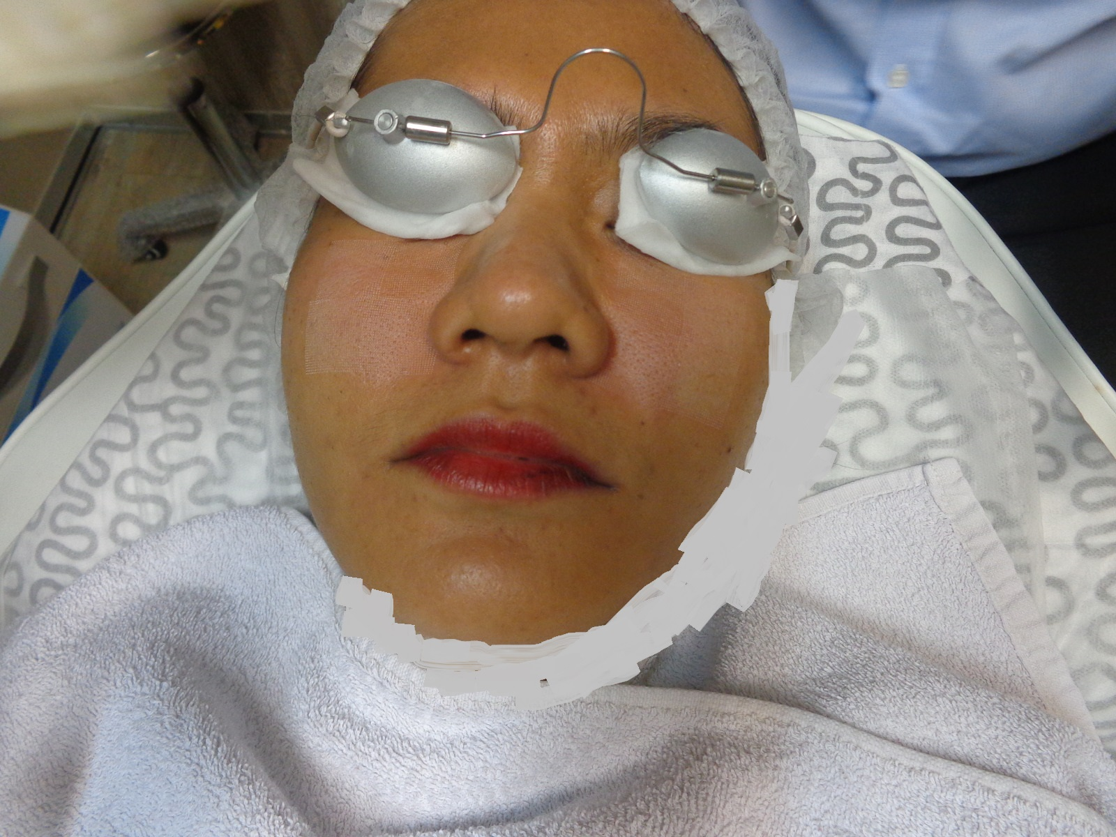 fractional laser process, fractional laser, premier clinic TTDI, fractional co2 laser, how to minimize ores in effective ways, how to minimize pores in fastest ways, minimizing pores, medlite c6 laser, Dr kee Yong Seng, aesthetic doctor, fractional laser process, LED Phototheraphy session,