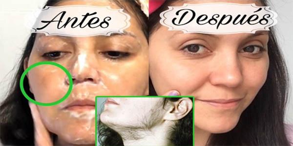 Cómo quitar todo el pelo y los puntos faciales usando estos 3 remedios caseros