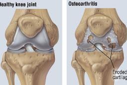 Cara mengatasi nyeri sendi karena osteoarthritis