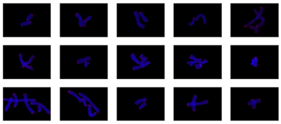 100 overlapping, full resolution, chromosomes isolated from 14 metaphases of human lymphocytes