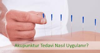 Akupunktur Nedir Hangi Hastalıklarda Uygulanır