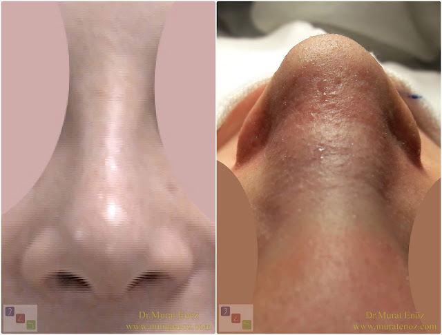 Combining rhinoplasty with extracorporeal septal perforation repair