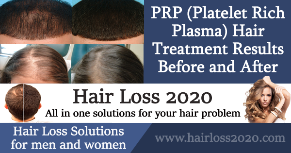 PRP Hair Treatment Results Before and After