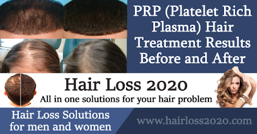 PRP Hair Treatment Results 2018 Before and After