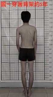 脊椎側彎, 脊椎側彎背架, 脊椎度數, 脊椎側彎矯正, 脊椎側彎治療, schroth運動, schroth脊椎側彎, 德國Schroth, 脊椎側彎矯正運動, 脊椎側彎會怎樣