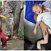 Neneknya Heran Serta Khawatir Perut Cucunya ini Terus Membesar Setiap Bulannya.. Saat di Periksa Dokter, Siapa Sangka Ternyata ini Yang ada di Dalam Perutnya.