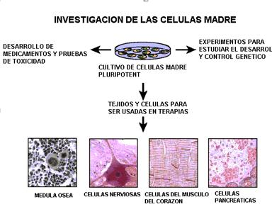 en las células pancreáticas de diabetes tipo 2
