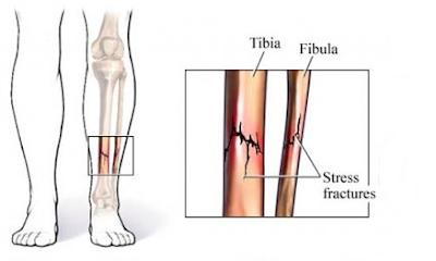 Obat tulang retak tradisional