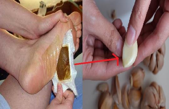Kuras Habis Racun Di TubuhMu Dengan Bawang putih