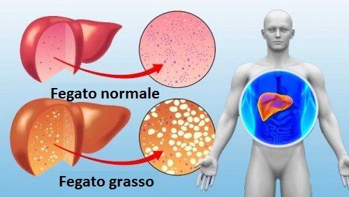 Consigli per avere un fegato sano e funzionale