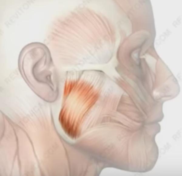 как крепится жевательная мышца лица, смещение жевательной мышцы лица