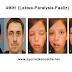 Lakwa (Lakva) -Paralysis-Faaliz- लकवा पैरालिसिस को ये २२ आयुर्वेदिक उपचार कर देगे जड़ से ठीक