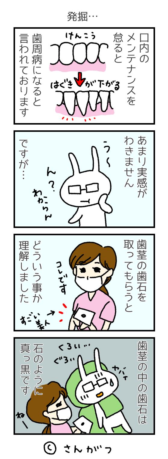 歯科矯正の漫画 5 親知らずの抜歯・・・の前に編