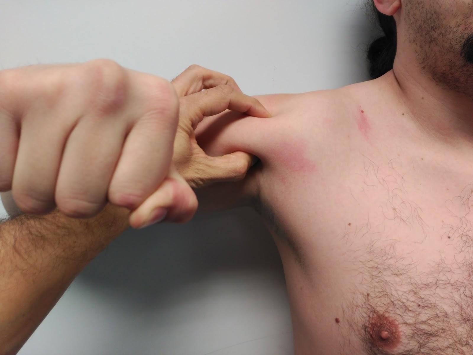 Fisioterapia con Fabien Guiyoule: Deltoides y balance muscular